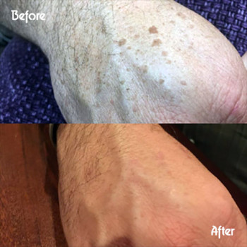 Hands skin treatment before and after